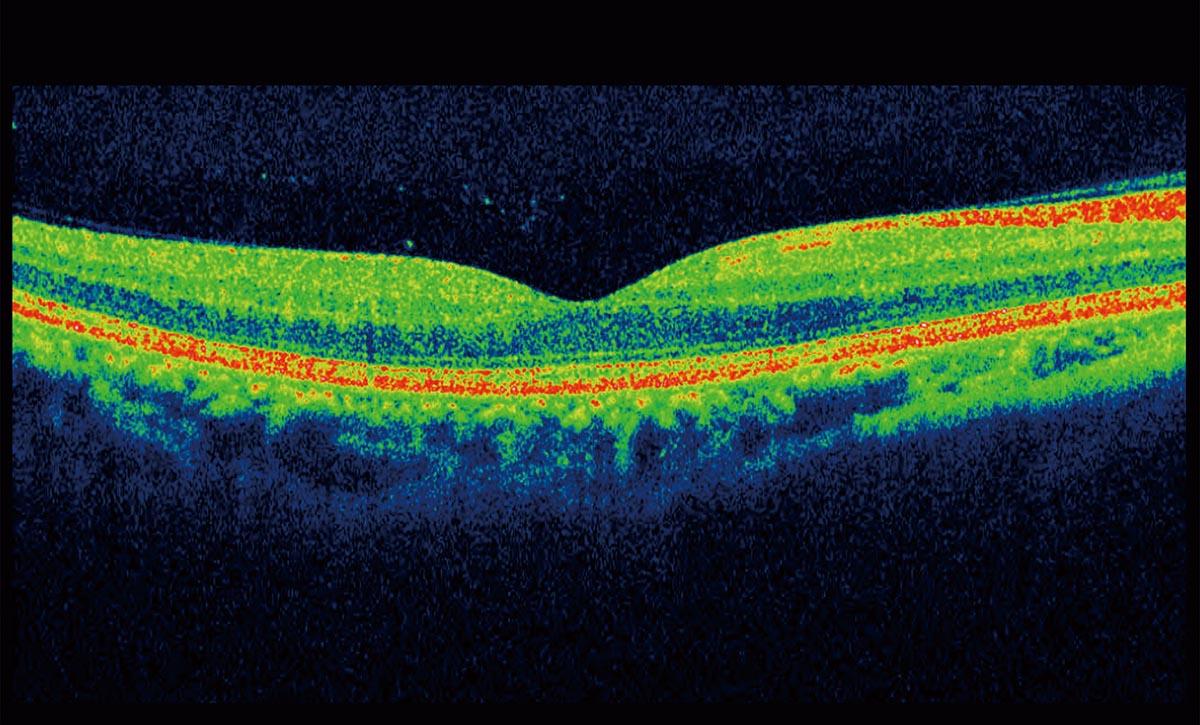 Horsham Opticians - OCT Optical Coherence Tomographer Eye Tests at Louise Sloan Opticians